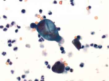Urothelial Cells Urine